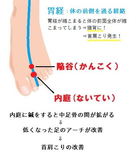 足のアーチの治効メカニズム