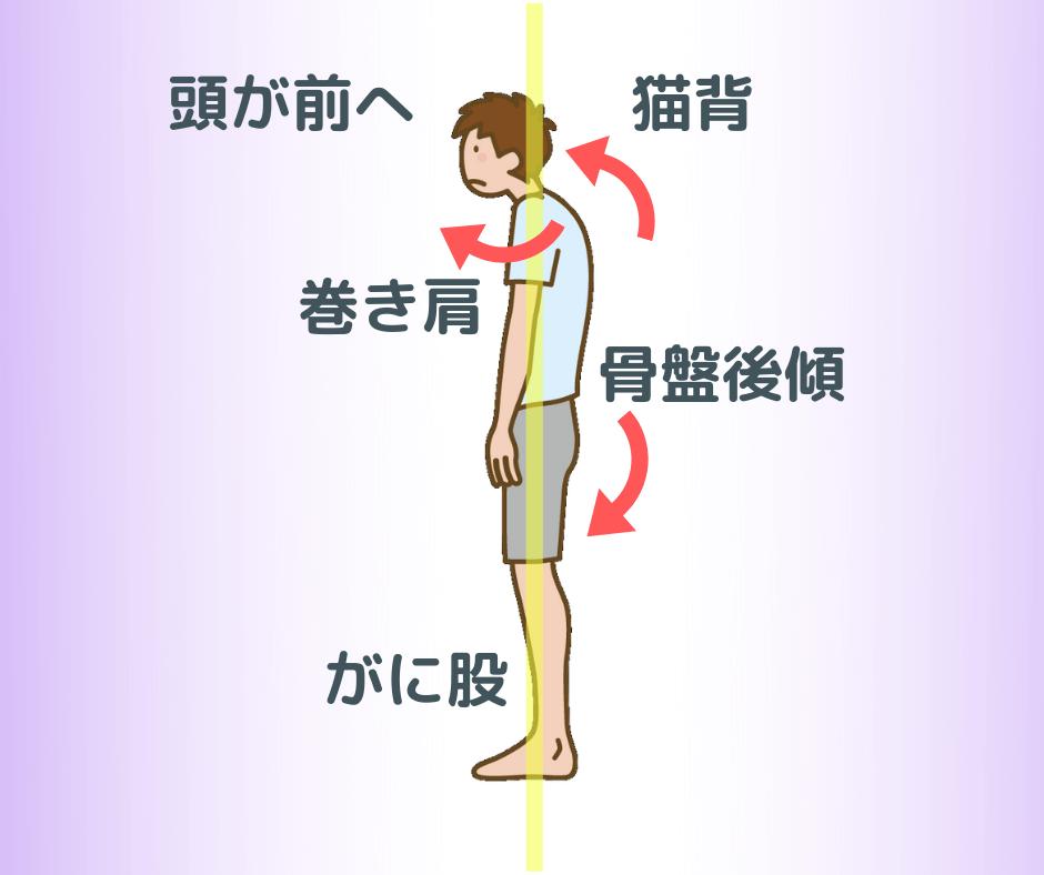 靴の外側が減る人の姿勢
