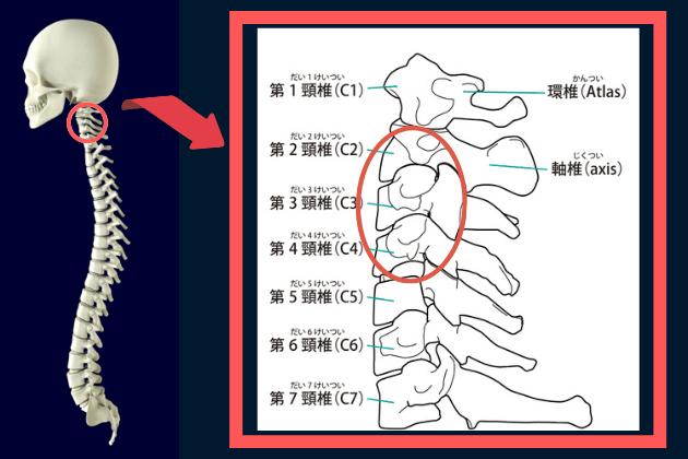 頸椎2-4