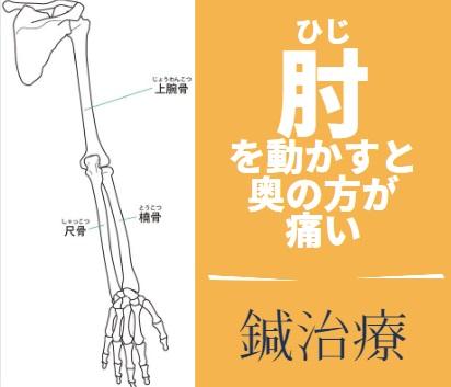 肘の鍼治療